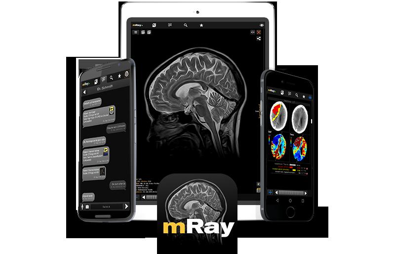 mRay - eine App viele Anwendungen im arbeitsalltag